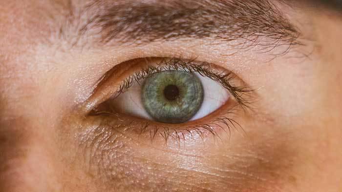 men eyes dark circles