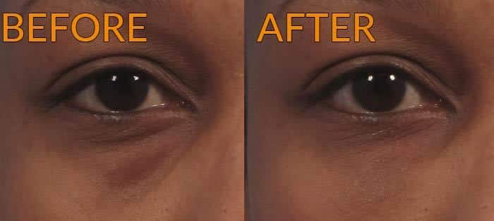 eye fat grafting before after