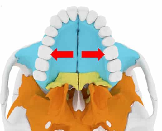 mid palatal suture