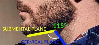 submental angle
