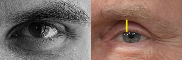 Upper Eyelid Exposure