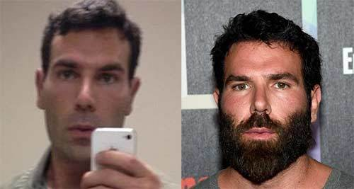 Dan Bilzerian Without Beard