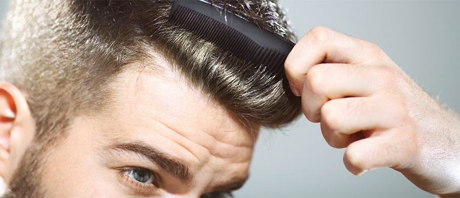 Hair Loss Guide