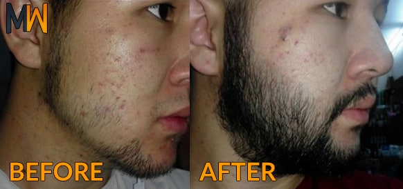 minox beard results
