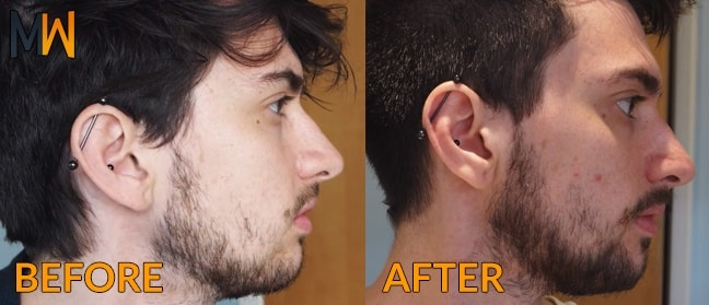 minox beard before/after pictures