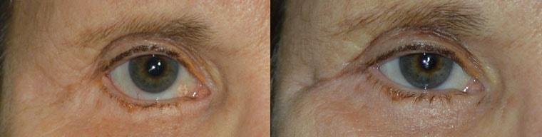 eyelid retraction