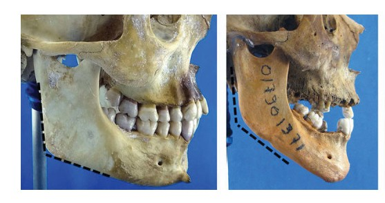 skull aging differences