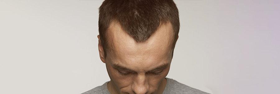 is balding unattractive?