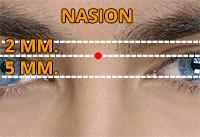 Nasion