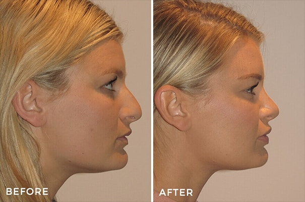 Is looking more attractive nose which Study suggests