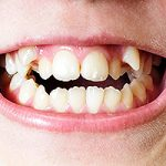 Are Crooked Teeth Attractive?