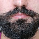 Can a Beard Hide a Weak Chin?